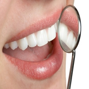 Feb-UC-001-White-Teeth1
